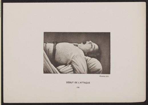 """Plate XV """"Début de L'attaque—Cri"""" (Onset of the Attack—Scream) from Iconographie photographique de la Salpêtrière, public domain"""